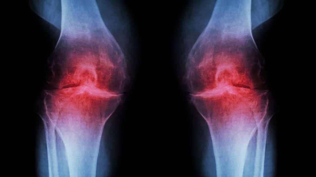 Stem Cell Care for Knee Pain